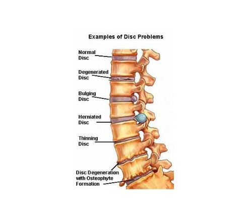 Alpha Chiropractic Clinic 187 Blog Archive Chiropractor
